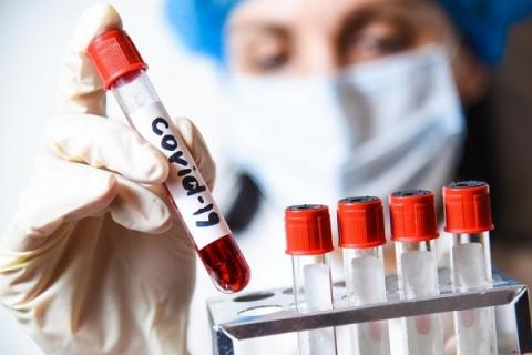 Рекордный 471 случай коронавируса выявили в Нижегородской области за сутки
